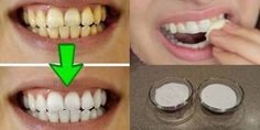 It Is Poven That You Can Whiten The Teeth In 2 Minutes - My Healthy Life Team
