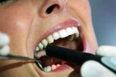 Mala salud bucal puede afectar al corazón y a los pulmones