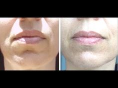 You can do this exercise while cooking or cleaning. I firmed my entire mouth area and improved my marionette and lip lines with this facial exercise. Facial Exercises For Jowls, Face Lift Exercises, Facial Therapy, Facial Yoga, Face Massage, How To Line Lips, Facial Treatment, Makeup Tricks, Best Face Products