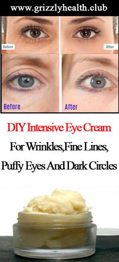 Homemade Intensive Eye Cream Recipe Ingredients: 2 tbsp shea butter 1 tbsp coconut oil 1 tsp beeswax 1 1/2 tsp rosehip oil 4 drops geranium essential oil Directions: In a clean jar, add all ingredients except for the rosehip and geranium essential oils. Fill a pot with water and place onto the stove top. Place …