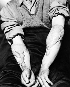 Akira Yamaguchi shows his heavy scars, June a result of the healing of burns sustained from the atomic bomb attack of Hiroshima. (AP Photo/U. Nuclear Bomb, Nuclear War, Fukushima, Nagasaki, World History, World War Ii, Atomic Bomb Hiroshima, Boring To Death, 65th Anniversary