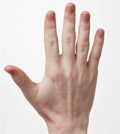 Medical Marijuana For Arthritis: A Natural Cure