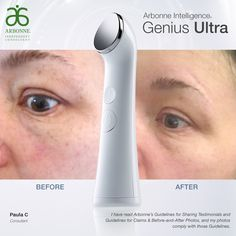 After just 2 weeks of using the Genius ultra device with the RE9 Advanced renewal serum, and lifting & contouring eye cream my skin feels refreshed, renewed, lifted and improvement in tone, fine lines and wrinkles.  Comment to find out how you can get your hands on this great product package at a greatly reduced price!  http://www.arbonne.com/discover/products/geniusultra.shtml?_ga=1.150685046.1163379720.1478819322