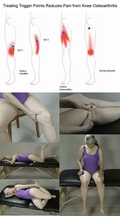Acupressure Pain Relief Treating Trigger Points Reduces Pain from Knee Osteoarthritis Knee Osteoarthritis, Knee Arthritis, Rheumatoid Arthritis Symptoms, Bursitis Knee, Sante Bio, Trigger Point Therapy, Knee Pain Relief, Knee Exercises, Sciatica Pain