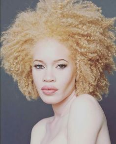 FEATURE: Model and activist Diandra Forrest raises awareness for albinism and women's rights. Watch her TEDx Talk and campaign for UN Human Rights, inside. Check it out —> http://www.afropunk.com/profiles/blogs/feature-model-and-activist-diandra-forrest-raises-awareness-for picture credit: Luis Quezada @luey78