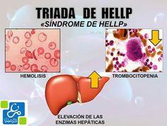Síndrome de HELLP (Obstetricia)