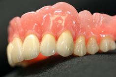 higiene de protesis dentales totales removibles, videos youtube sobre  higiene de protesis bucales totales removibles