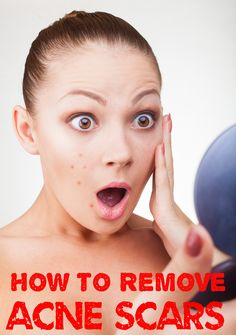How to Remove Scars and Acne Scars #acne #scars #skincare #beauty