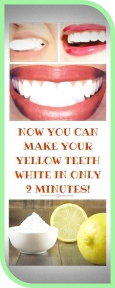 Reverse Cavities, How To Prevent Cavities, Oral Health, Dental Health, Health Care, Teeth Health, Causes Of Mouth Ulcers, Best Mouthwash, Homemade Toothpaste