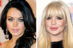 Lindsay Lohan Plastic Surgery Before and After Photos: Liquid facelift and Breast Implant and Lip Implant! - Celebrity Weight Loss and Celebrity Plastic Surgery Bad Plastic Surgeries, Plastic Surgery Gone Wrong, Plastic Surgery Photos, Lindsay Lohan, Johnny Depp, Lip Implants, Liquid Facelift, Celebrity Plastic Surgery, Cosmetic Procedures