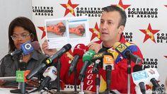 Disso Voce Sabia?: Suspeita de Ebola na Venezuela cria conflito político