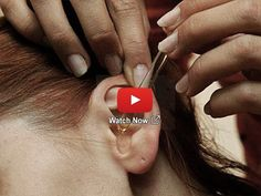 How To Relieve Tinnitus With This Simple Tip (No Surgery) Ear Cleaning, Medical Advice, Medical Conditions, Surgery, Health Fitness, Tips, Simple, Google, Health And Wellbeing
