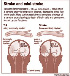 """""""A transient ischemic attack (abbreviated as TIA, often colloquially referred to as """"mini stroke"""") is caused by the changes in the blood su. Transient Ischemic Attack, Stroke Recovery, Nursing Tips, Icu Nursing, Nursing Notes, Nclex, Anatomy And Physiology, Nurse Life, Nursing Students"""