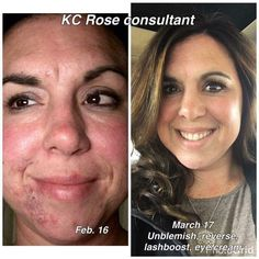 Clear your acne and smooth your complexion with Rodan+Fields #1 acne solution, UNBLEMISH!  This regimen treats all phases of the acne cycle leaving you with flawless skin and renewed confidence!