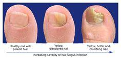 Really ugly Nails!
