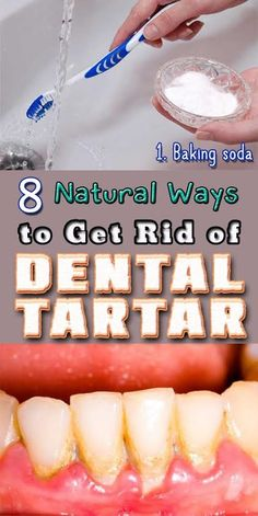Natural Teeth Whitening Remedies 8 Natural Ways to GET RID Of Dental Tartar! --> - If you ever experienced problems with dental tartar, just check this 8 natural homemade solutions to get rid of it in no time! Best Teeth Whitening Kit, Whitening Skin Care, Teeth Whitening Remedies, Natural Teeth Whitening, Dental Health, Oral Health, Dental Care, Health Care, Health Tips
