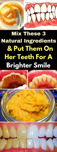 Remedies For Teeth Whitening Mix These 3 Natural Ingredients And Put Them On Her Teeth For A Brighter Smile – healthycatcher Teeth Whitening That Works, Teeth Whitening Remedies, Natural Teeth Whitening, Healthy Exercise, Healthy Teeth, Healthy Protein, Natural Home Remedies, Oral Health, Teeth Health