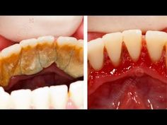 This One Ingredient Will Get Rid Of Your Plaque, Bad Breath, and Remove Tartar - YouTube