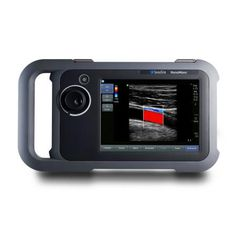 Sonosite, an ultrasound device maker worth over $750m, suggests they are moving towards using tablets like the iPad with future ultrasound probes.
