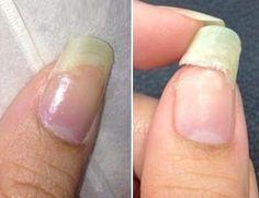 Comment réparer un ongle cassé instantanément !