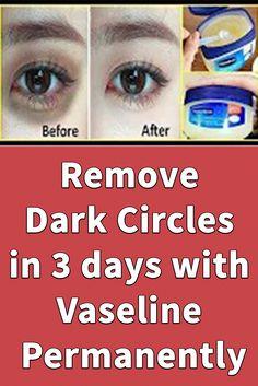 Dark Circles Around Eyes, Dark Circle Remedies, Vaseline Beauty Tips, Dark Spots On Skin, Beauty Tips For Glowing Skin, Skin Care Remedies, Face Skin Care, Dark Eyes, Dove Cream