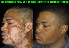 Thus you should order benoquin 20%, buy monobenzone cream online, and use it thrice daily in order to treat vitiligo.