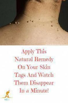 How to Remove Warts Naturally #WartsOnFace #HowToGetRidOfSkinWarts #WhatIsTheBestWayToRemoveWarts #WartsOnHands Warts On Hands, Warts On Face, Get Rid Of Warts, Remove Warts, Skin Tags Home Remedies, Cold Remedies, Herbal Remedies, Health Remedies, Acne Remedies