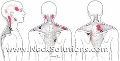 Trapezius Myalgia Is A Condition Of Chronic Neck Pain Caused By Trapezius Muscle Problems. Exercise To Strengthen The Muscles Can Help With Pain Relief