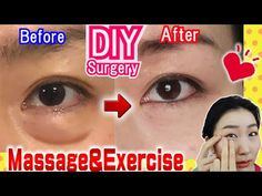 How to Remove Under Eye Bags👁️ Naturally in 7 Days Massage & Exercises🙋 - YouTube Under Eye Lines, Face Exercises, Diy Hair Care, Under Eye Bags, Face Yoga, Face Massage, Remover, Youtube, All About Eyes