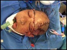 Testemunho - ESTAVA MORTA!!!  Acidente muito forte!!!