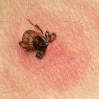 [CanLyme note: For decades Canadian health care leadership have downplayed the prevalence of Lyme disease (borreliosis) in ticks based upon poor surveillance p Rss Feed, Rocky Mountain Spotted Fever, Tick Removal, Science Daily, Flu Like Symptoms, Bacterial Infection, Lyme Disease, Ticks, Loosing Weight