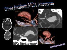 Giant Fusiform Medial Cerebral Artery Aneurysm by Ruth Martin Boizas via slideshare