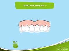 Invisalign is a transparent and removable orthodontic, which is an alternative to ceramic and metal tooth constituents. Ask now! Call us NOW +971 4 374 8428 #AMDC #Dental_clinic #Dentist_Dubai #Veneer #Dental_Implants #Invisalign #braces #teethwhitening #ZoomWhitening #Mydubai #Dubai #UAE #Quality #Topdentist #love #Smile #happy #happiness