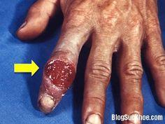 Không phổ biến như bệnh sùi mào gà, lậu, giang mai, rận mu, mụn rộp sinh dục, viêm gan B, đây là những căn bệnh hiếm gặp song hậu quả khôn lường. Hạ cam mềm Bệnh hạ cam mềm là một bệnh cấp tính, lây truyền qua đường tình dục. Bệnh làm tăng khả năng lây truyền HIV từ 5 đến10 lần hoặc cao...