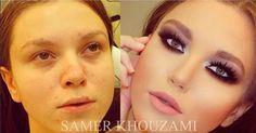 Marcas de espinha somem completamente com a preparação completa da pele, passo inicial e fundamental para a maquiagem, segundo Samer
