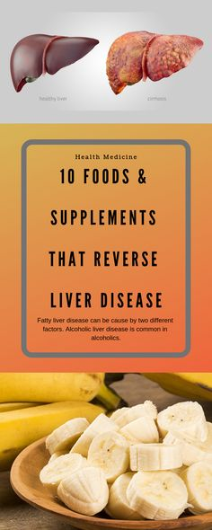 liver disease can be cause by two different factors. Alcoholic liver disease is common in alcoholics. Fatty liver disease can be cause by two different factors. Alcoholic liver disease is common in alcoholics. Natural Liver Detox, Best Liver Detox, Fatty Liver Diet, Liver Detox Cleanse, Healthy Liver, Body Cleanse, Health Cleanse, Healthy Eating, Detox Smoothie Recipes