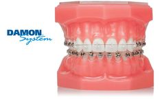 Damon Clear Braces Virtually invisible, Damon Clear has clear advantages over traditional braces and aligners. Damon Clear is part of the innovative Damon System, which combines tieless braces with high technology archwires that are clinically proven to m Kids Braces, Dental Braces, Braces Tips, Kids Health, Dental Health, Damon Braces, Ceramic Braces, Brace Face, Braces Colors