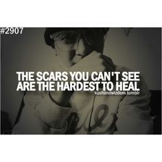 We all have scars, but how we choose to live with them is what matters ........ always choose to rise above!!!