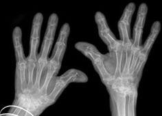 Chiropractic For Arthritis - Benefits, Concerns, Side Effects, And Effectiveness - www.wentzvillechiropractic.com