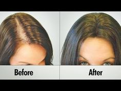 Regrow Lost Hair in 10 Days from the Roots Guaranteed - No hair loss and fast hair growth - YouTube