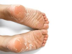 Skin Care Remedies This foot soak for dead skin means serious business! It's the ultimate soft feet remedy. It's a dead skin and callus remover that actually works. Perfect for dry, cracked feet! Listerine, Best Callus Remover, Foot Remedies, Cracked Feet, Luscious Hair, Home Remedies For Hair, Beauty Care, Beauty Tips, Nail Manicure