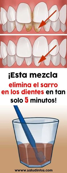 Dental Activities for Kids - Todo Sobre La Salud Bucal 2020 Natural Teething Remedies, Natural Home Remedies, Herbal Remedies, Health Tips, Health And Wellness, Health Fitness, What Causes Tooth Decay, Healthy Teeth, Dental Health