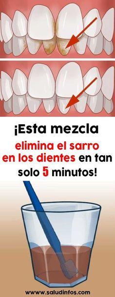 Esta mezcla elimina el sarro en los dientes en tan solo 5 minutos! #salud #saludable