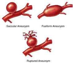 AVM & Aneurysm awareness...... AVM Netherlands on Facebook