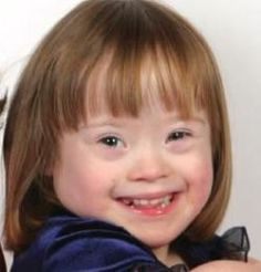 Today's guest post on genetic syndromes comes from Rachel Nortz, who is contributing a post on the Down Syndrome. Down Syndrome is a genetic disorder that is Special Needs Kids, Special People, Down Syndrome Kids, Assistive Technology, Early Intervention, Speech Therapy Activities, Helping Children, Speech And Language, Happy Kids
