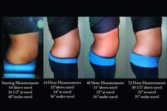 wrap to lose inches in just 45 minutes.  this is the results of 72 hours progress.  tighten, tone, and firm those trouble areas.  wraps are 4 for $59 as a loyal customer wraps can be ordered at tanyacarter.myitw...  like it at facebook www.facebook.com/...