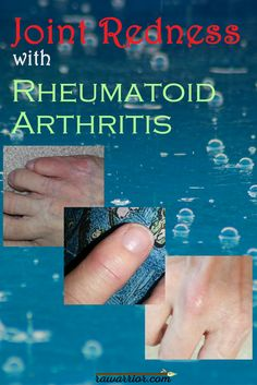 Joint Redness with Rheumatoid Arthritis. The difference between the fake redness the media presents and what people experience. And why it matters. Yoga For Arthritis, Natural Remedies For Arthritis, Rheumatoid Arthritis Treatment, Knee Arthritis, Arthritis Relief, Types Of Arthritis, Arthritis Exercises, Juvenile Arthritis, Arthritis