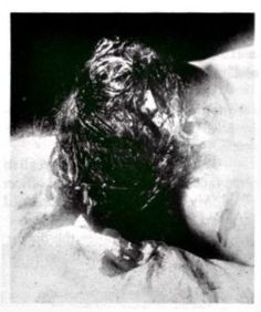 Andrew and Abby Borden Autopsy Photos Fall River, Forensics, Serial Killers, True Crime, Close Image, Science And Nature, Weird Facts, Axe, Murder Stories