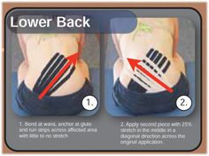 Kinesiology taping instructions for edema in the lower back from Rocktape. Rocktape precut strips can be found online at: http://www.theratape.com/rocktape-precut-edema-strips.html
