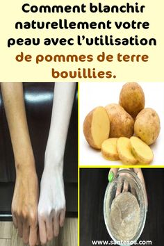 Comment blanchir naturellement votre peau avec l'utilisation de pommes de terre bouillies. #peau #pommesdeterre #remèdes #beauté #astucesbeauté Baked Potato, Sweet Potato, Creme Anti Rides, Diy Hairstyles, Skin Care, Baking, Ethnic Recipes, Ankara, Tips